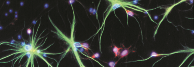 Neurons and astrocytes