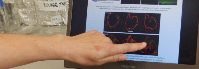 Scientist looking at a spinal cord injury on a laptop