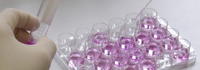 Culturing cells
