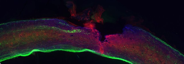 Glial scar on a spinal cord injury